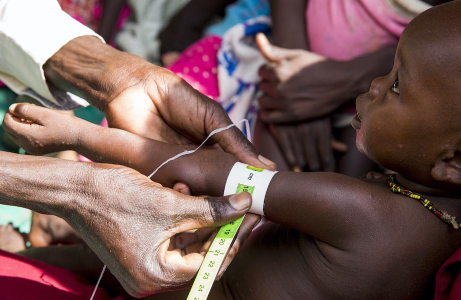 Com pandemia, desnutrição pode afetar 10 milhões de crianças